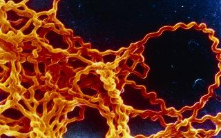 Лептоспироз или инфекционная желтуха: как победить болезнь